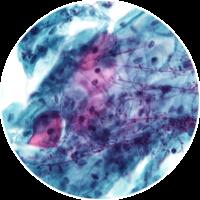 Eliminazione batteri con ozono